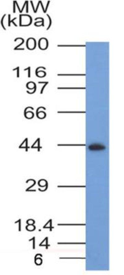 NBP235334SS