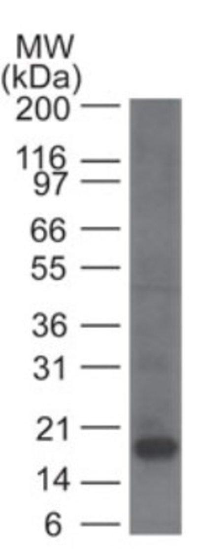 NBP214845SS