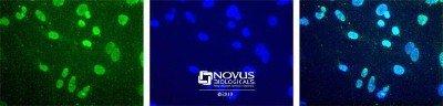 NBP130141SS