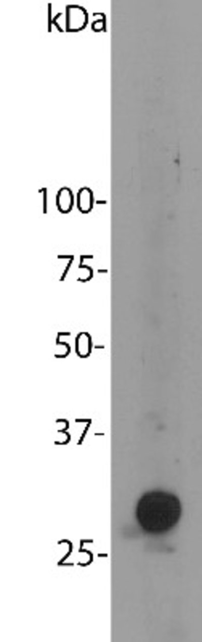 NBP225158