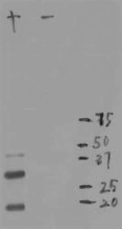 NBP196752SS