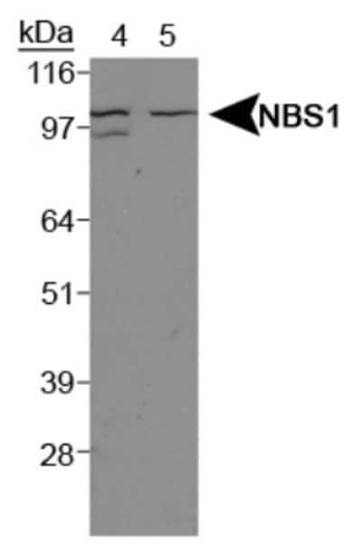NBP106609SS
