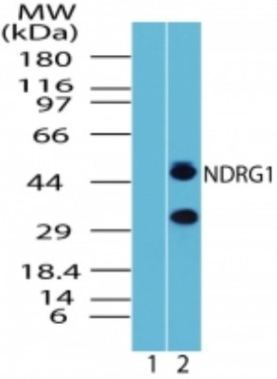 NBP223658SS