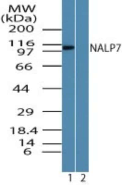 NBP224556SS