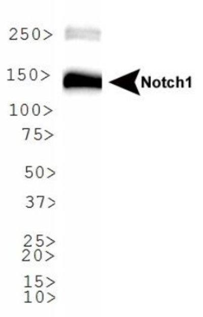 NBP178292