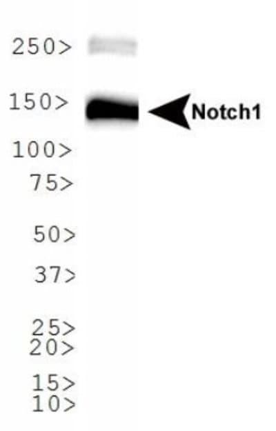 NBP178292SS