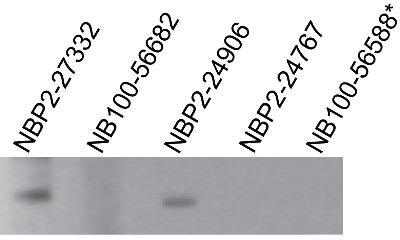 NBP225274
