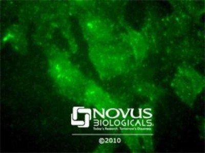 NBP130436SS